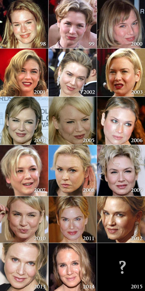 renee-zellweger-before-and after-2014