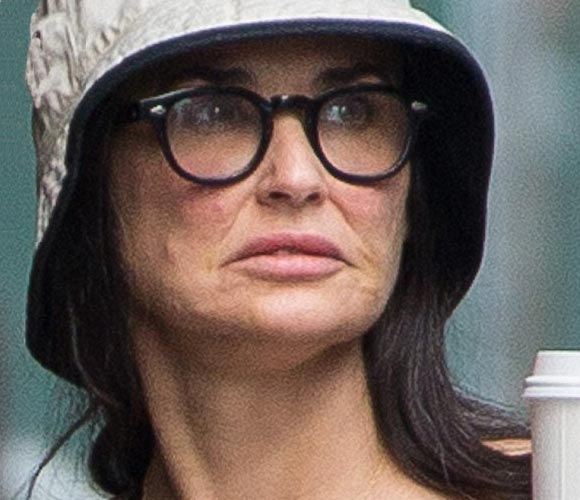 Demi-Moore-plastic- surgery-july-2015