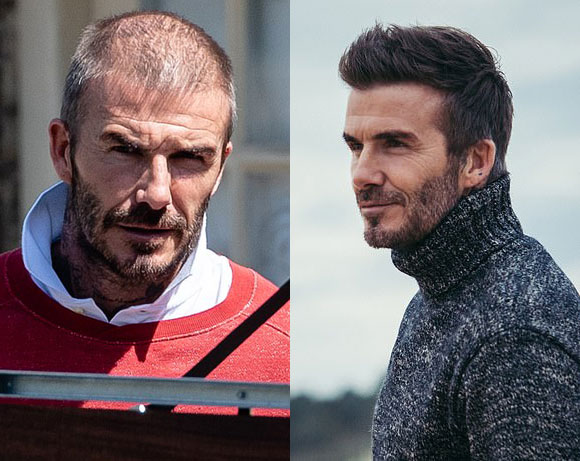david-beckham-hair-transplant-may-2020-01